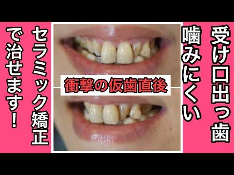 人前で笑っても歯並びを見られている気がしました