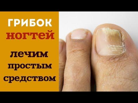 Народные средства в лечение грибка ногтей