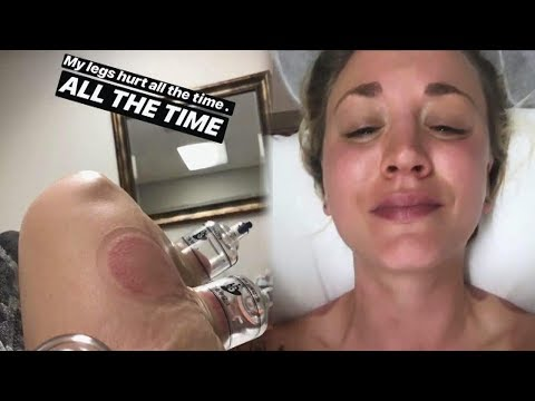 Watch Kaley Cuoco's INTENSE Cupping Treatment