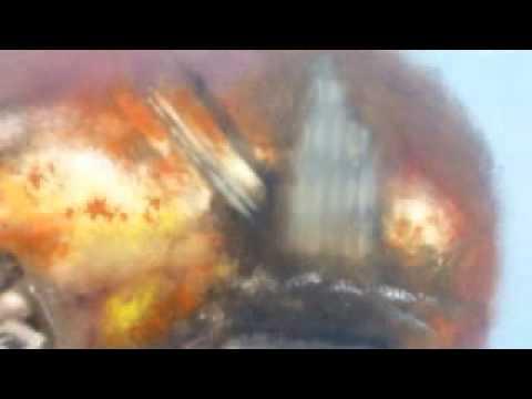 911 JFK THERMITE