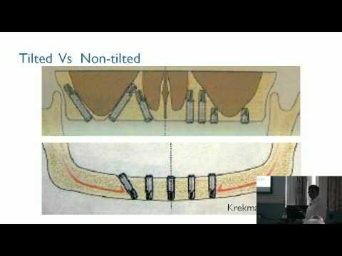 Implant Prosthesis in Atrophic Maxilla & Mandible without Bone Augmentation