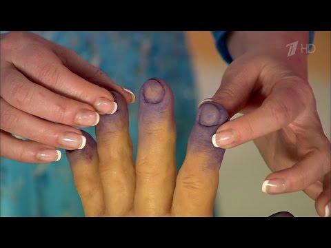 Болит и синеет палец на руке