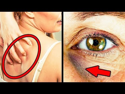 Download Youtube: 30 HEALTH HACKS EVERYONE SHOULD KNOW