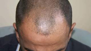 Hair transplant, FUE 1800 Grafts