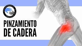 La izquierda nervio pellizcado cadera de cerca