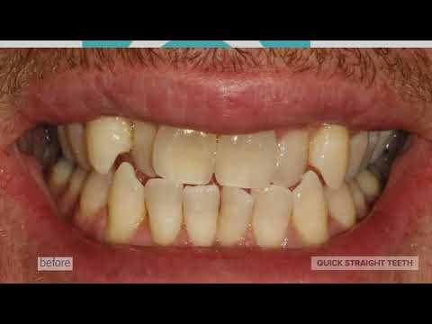 Diamond Smiles Dental Clinic Quick Straight Teeth Video