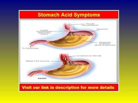 Stomach Acid Symptoms