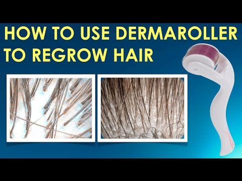 how-to-use-the-dermaroller-to-regrow-hair,-stop-hair-loss-and-grow-hair-on-receding-hairline