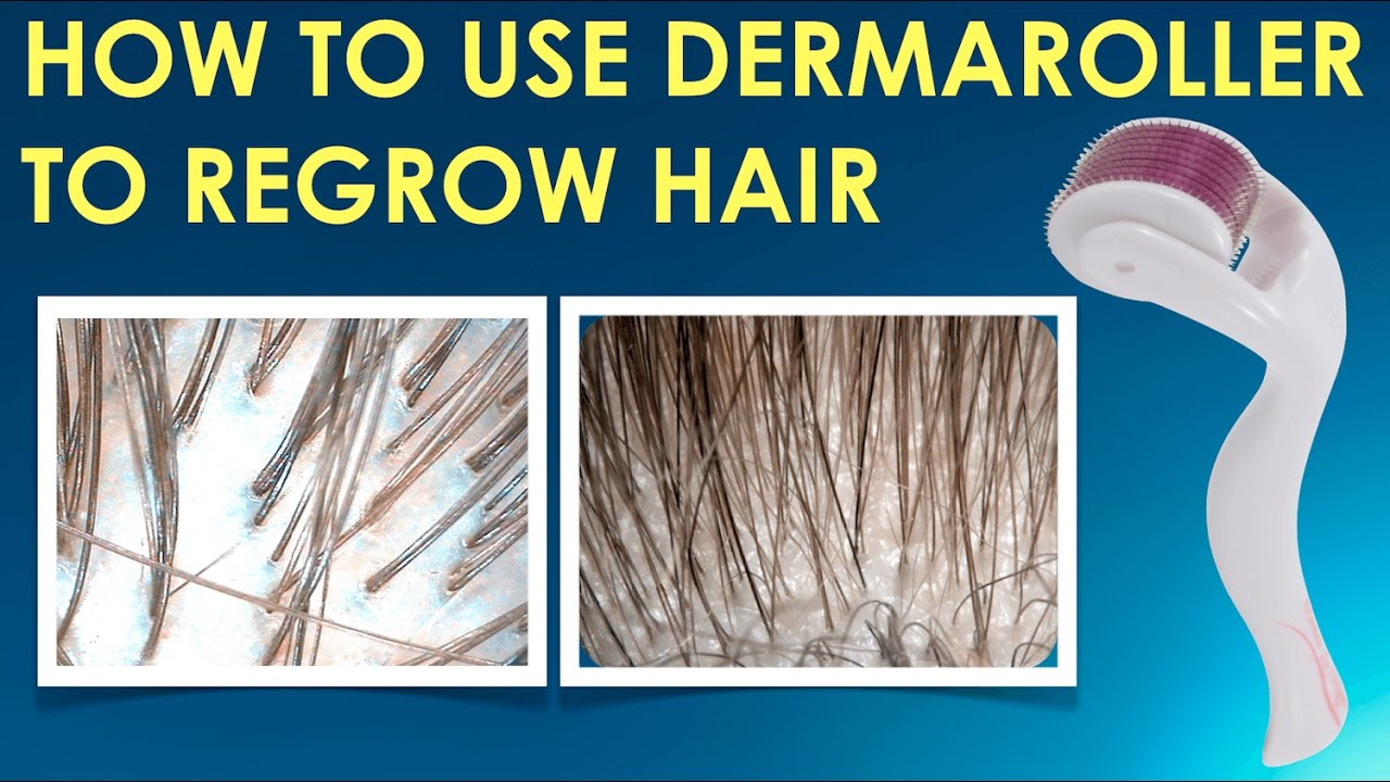 how to stop hair fall and regrow hair