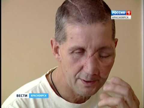 Красноярские врачи по крупицам собрали лицо охотника, раненного медведем