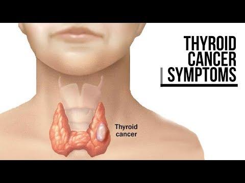 Cancerous Thyroid Nodules