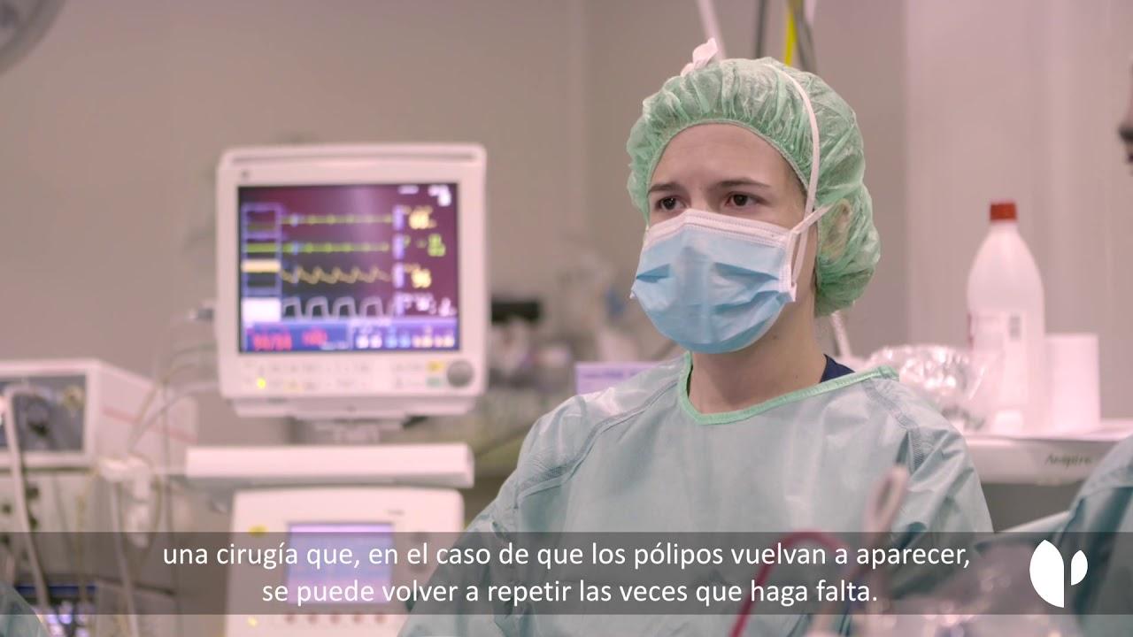 Videos de como operan los senos