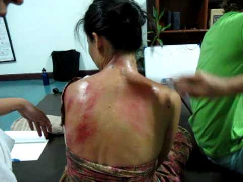 gua sha in thailand they call Hak 2