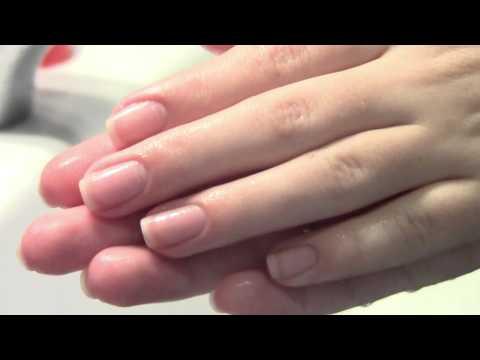 Белые ногти на руках почему