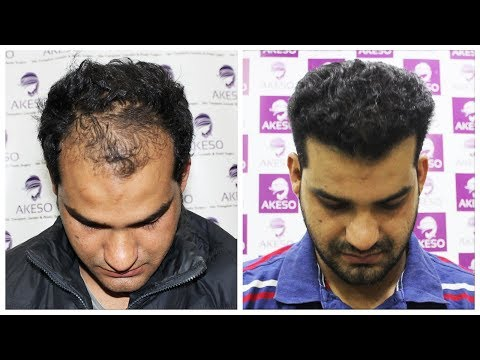 HAIR TRANSPLANT RESULT AFTER 7 MONTHS   BEST HAIR TRANSPLANT IN INDIA AT AKESO