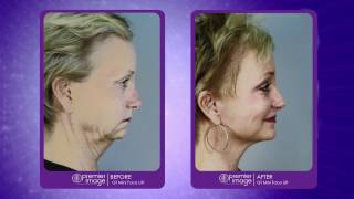 Premier Image Cosmetic & Laser Surgery Atlanta- TV Commercial Thumbnail