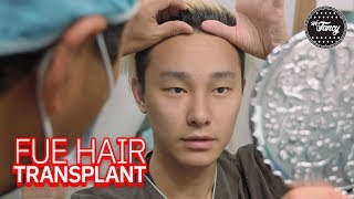 He Got a Hair Transplant in KOREA! [Part One]