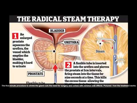 Rezum, Steam treatment for prostate enlargement