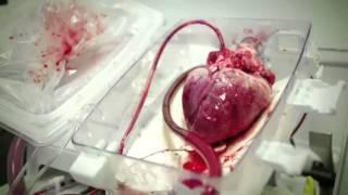 «Национальный научный кардиохирургический центр», Астана, Казахстан(Для представителей медицинского научного круга и пациентов АО «Национальный научный кардиохирургический..., 2014-07-29T03:51:45.000Z)