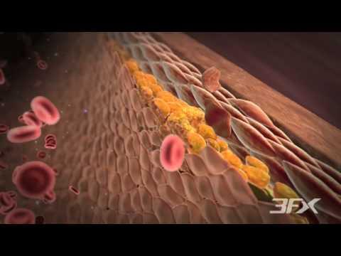 Diabetic Peripheral Arterial Disease (P.A.D.)