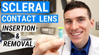 How to Insert and Remove SCLERAL LENSES | Beginners Guide to Scleral Lenses