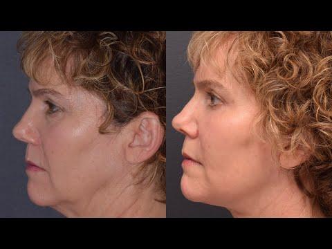 Facelift & Necklift Patient Testimonial