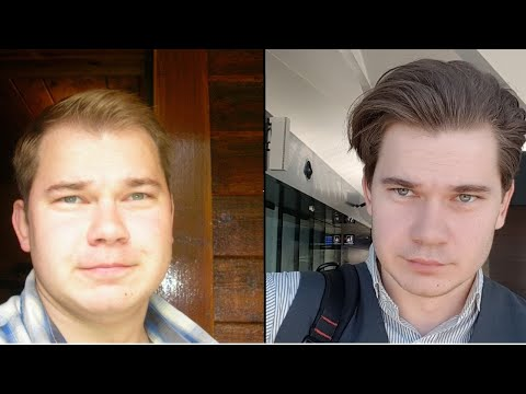Truth About Finasteride: My 12 Year Update Results