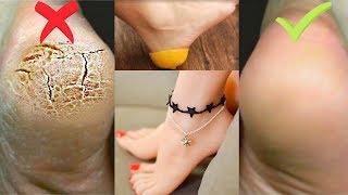 Get Soft & Beautiful Feet, Get Rid of Cracked Heels, Pedicure Homemade Treatment Urdu Hindi