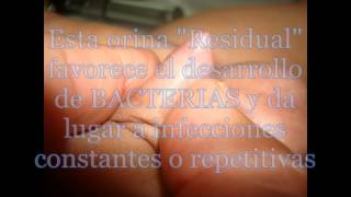 Repeat youtube video 7° MES PRIMERA PARTE: PESO, TALLA, FIMOSIS,  BAJO PESO,  INFECCIONES URINARIAS