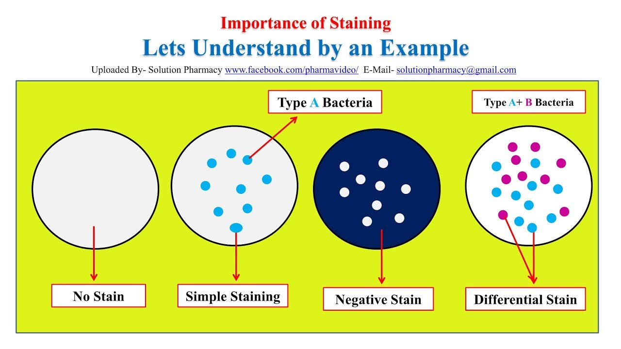 Microbial Staining Simple Staining Gram Staining Acid Fast