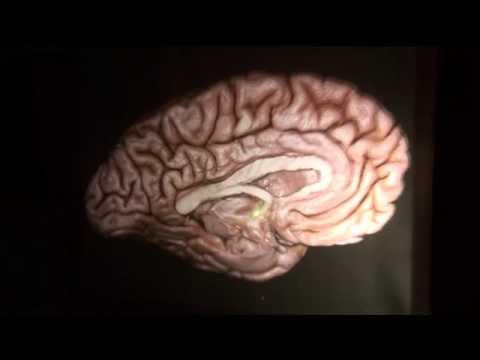 Brain Architecture Part 1 by Guilherme Carvalhal Ribas, M.D.