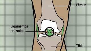 Artroscópica cirurgia para de do joelho hematomas recuperação