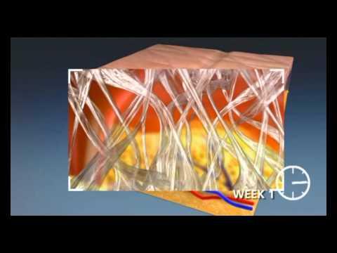 Фракционное омоложение кожи на аппарате Smartxide Dot