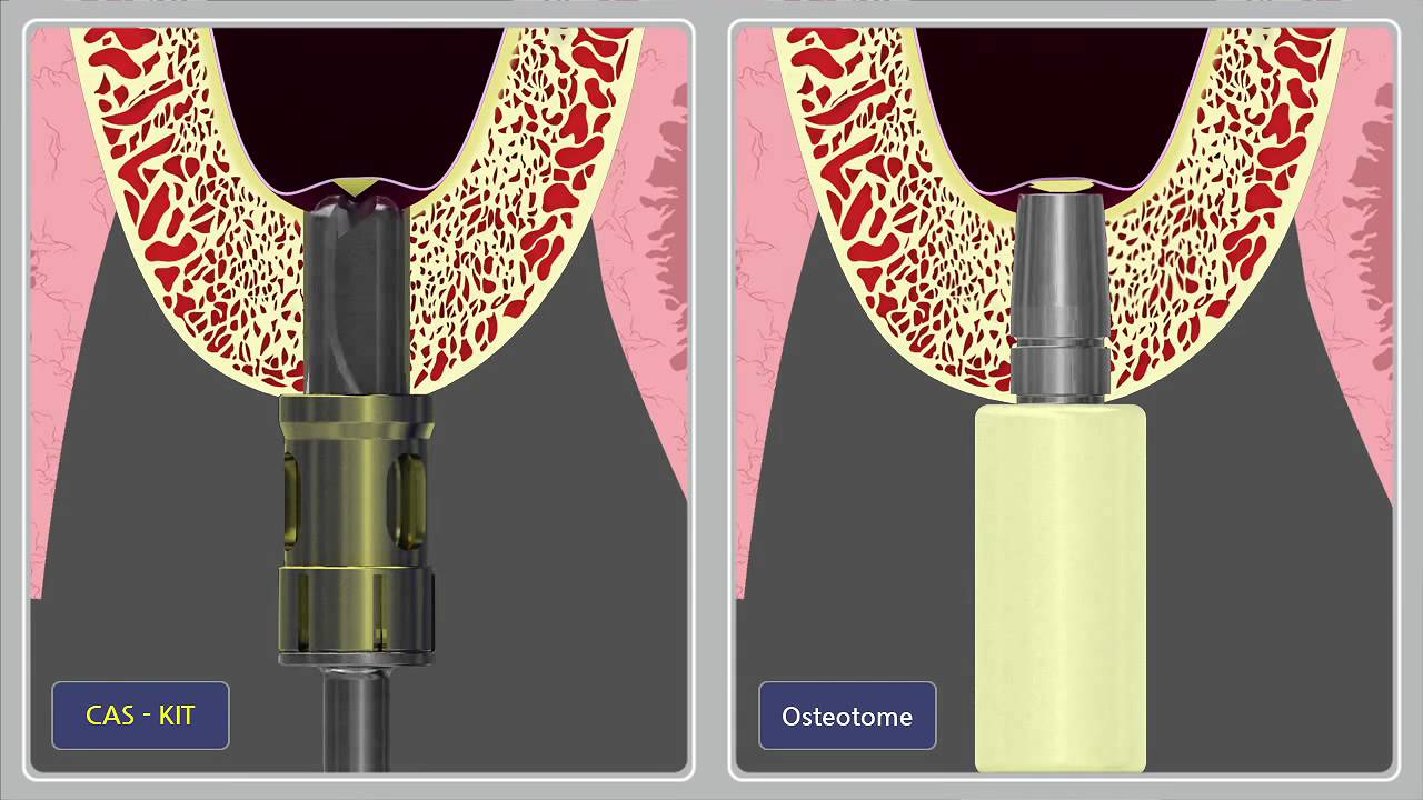 3 Lift Kit >> CAS Kit Drill vs. Osteotome Comparison.mp4 - YouTube