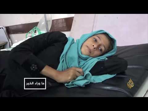 ما وراء الخبر- أطفال اليمن.. في مواجهة الموت ????  - نشر قبل 4 ساعة