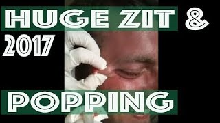 Huge Zit & Popping Painfuly 2017