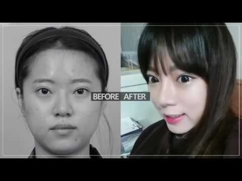 Kinh  nghiệm phẫu thuật thẩm mỹ mắt, mũi Hàn Quốc