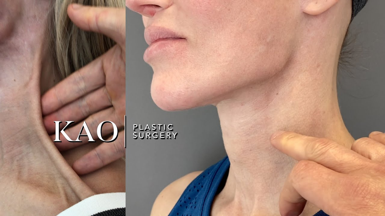 Ponytail Rescue: Lower Face / Neck Revision - Plastic Surgery - Fixed Facial Nerve Paralysis!