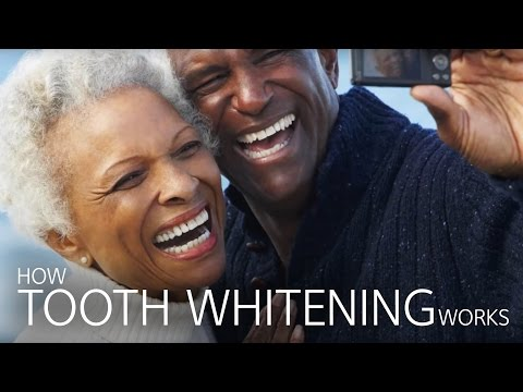 How Tooth Whitening Works