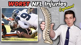 Worst NFL Injuries EVER! Doctor Explains Johnny Knox BROKEN SPINE (Career Ending)