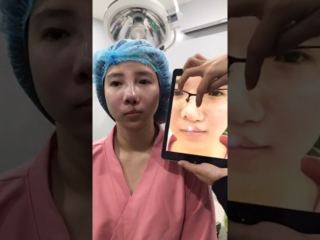TẠO HÌNH MŨI + MÔI Mũi + Môi (bệnh lý hở hàm ếch bẩm sinh)| Livestream tại Topaz Beauty House #1