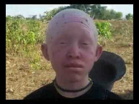 Stop the brutality and suffering of Albino people. - YouTube