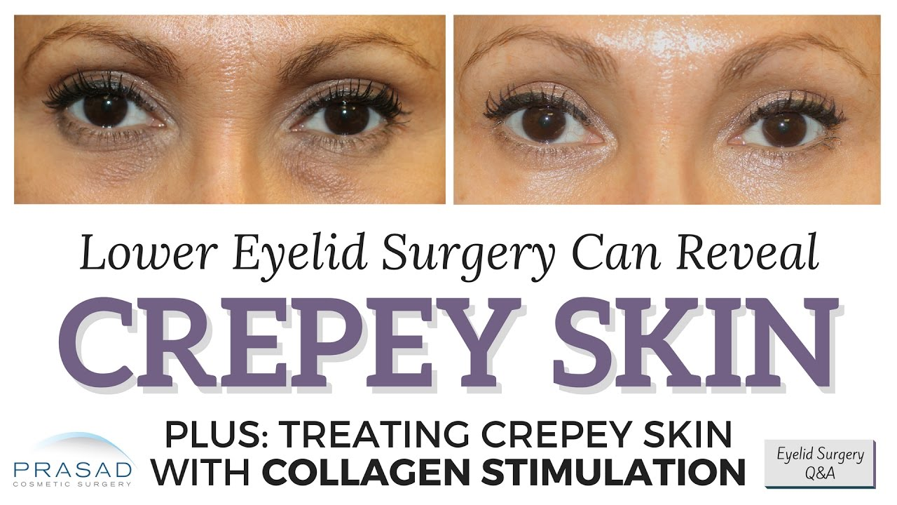 How Eye Bags can Camouflage Crepey Lower Eyelid Skin, and Options ...