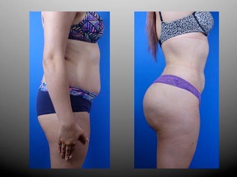 Butt Augmentation Houston Dr Cortes Plastic Surgeon