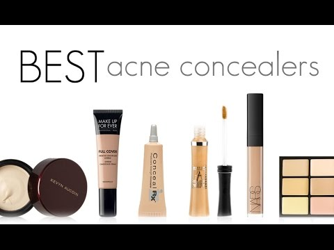 THE BEST CONCEALERS FOR ACNE PRONE SKIN! - YouTube