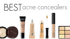 hqdefault - Best Concealers For Oily Acne Prone Skin
