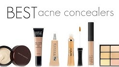 hqdefault - What Is The Best Concealer For Acne Skin