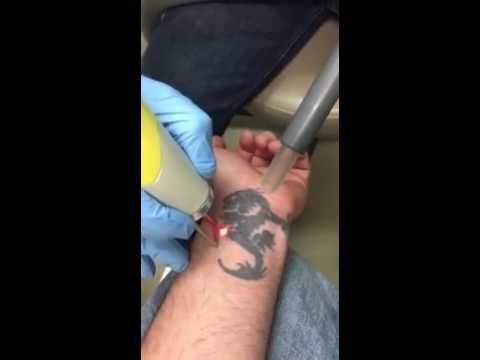 Laser Tattoo Removal Bryan