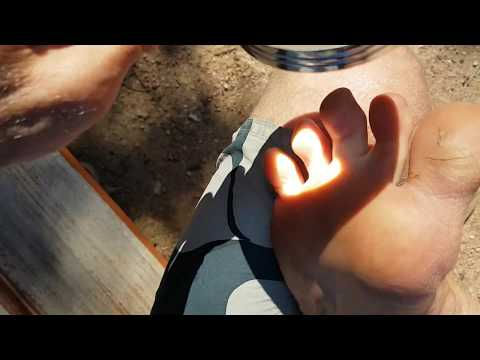 Killing Athletes Foot With Sunlight and Magnifying Glass