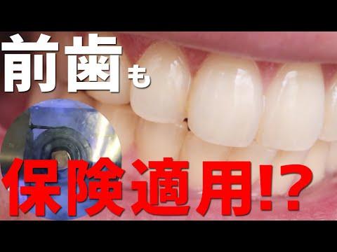 保険でできる白い歯CADCAM冠の前歯適用について